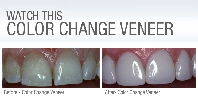 Color Change Veneer