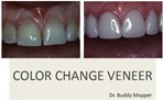 Color Change Veneers