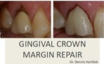 Gingival Crown Margin Repair