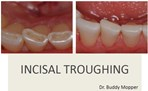 Incisal Troughing