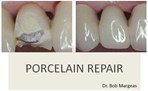Porcelain Repair