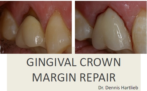 Gingival Crown Margin Repair Composite Techniques
