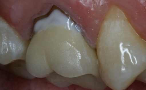 GingivalCrownMarginalRepair_07
