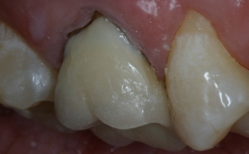 GingivalCrownMarginalRepair_08