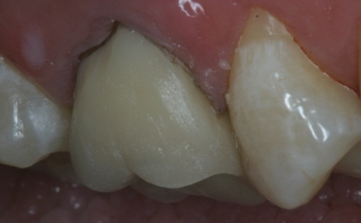 GingivalCrownMarginalRepair_09