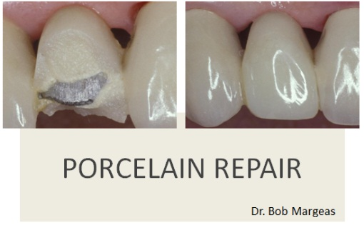 Porcelain Repair Composite Techniques Photo Galleries